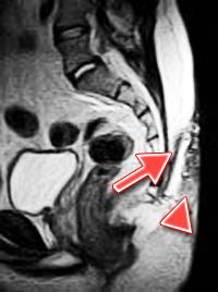 MRI-pilonidal